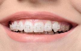 08-braces