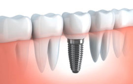 00-dental-implants