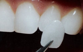 00-dental-veneers